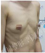 冯斌胸部修复案例:丰胸失败修复