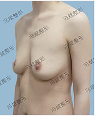 孙泽芳胸部修复案例:贵妃丰胸