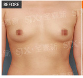 李朕胸部修复案例:硅胶隆胸
