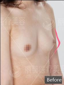 胸部修复案例:乳房两侧不对称