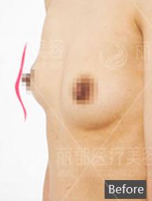 胸部修复案例:胸部下垂