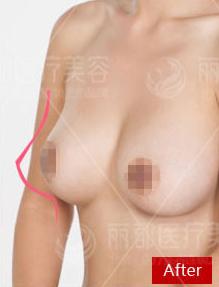 胸部修复案例:一大一小