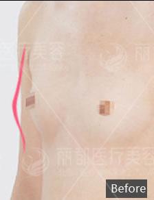 胸部修复案例:乳房萎缩下垂